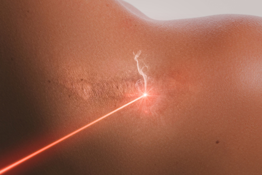 Laser - Dermatologie | Praxis Dr. Schneider & Dr. Krüger in Freudenstadt